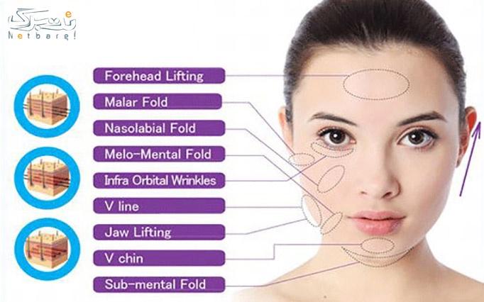 جوانسازی پوست با نخ کلاژن ساز در مطب دکتر فرزان