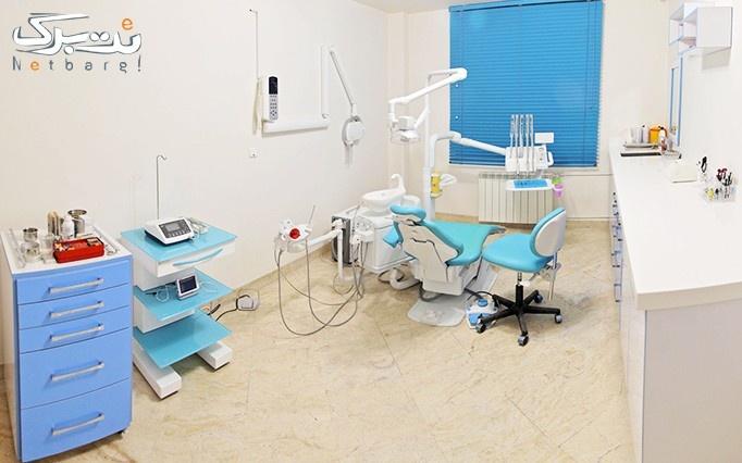 بیلیچینگ در مطب آقای دکتر سینا سلوتی