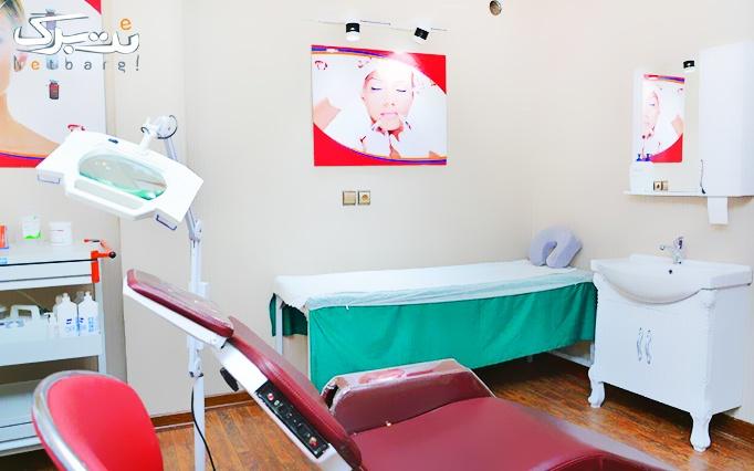 کربوکسی تراپی در مطب آقای دکتر شکفته