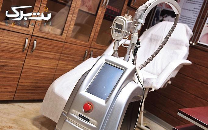 لیزر دایود در مطب خانم دکتر میرئی