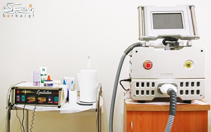 لیزر الکساندرایت در مطب خانم دکتر بهادرانی