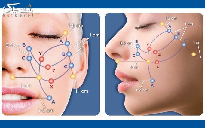 جوانسازی با نخ کلاژن ساز توسط دکتر صالحی
