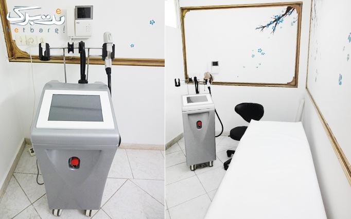 لیزر اسموت کول در  مطب دکتر مصطفوی