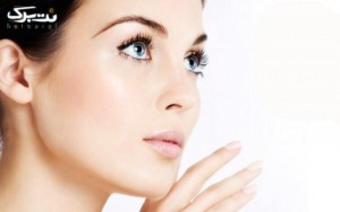 میکرودرم ابریژن و ماسک سه گانه درمرکز پوست و لیزر گلبرگ