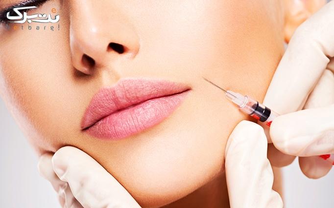 تزریق ژل در مطب درمانگاه تخصصی پوست و مو جلوه ماندگار