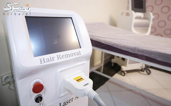 لیزر  با دستگاه الکس ماتریکس در مطب دکتر نام آور