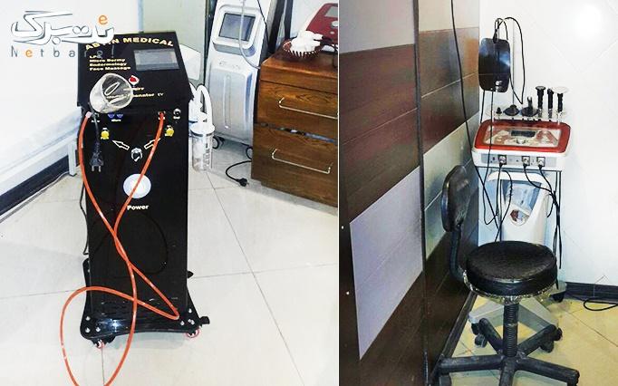 لاغری با LPG در مطب  خانم دکتر عطایی