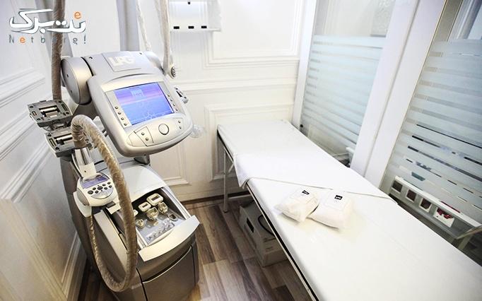 لاغری با LPG در مطب  دکتر شفایی