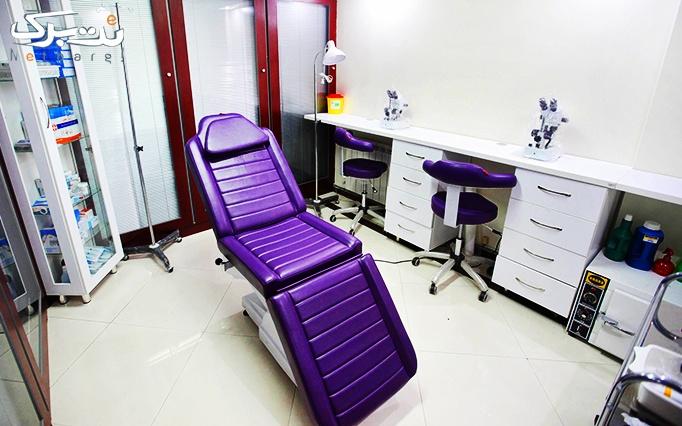 تزریق بوتاکس دیسپورت در مطب دکتر مهدوی راد