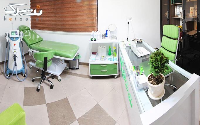 لیزر دایود در مطب دکتر موسوی