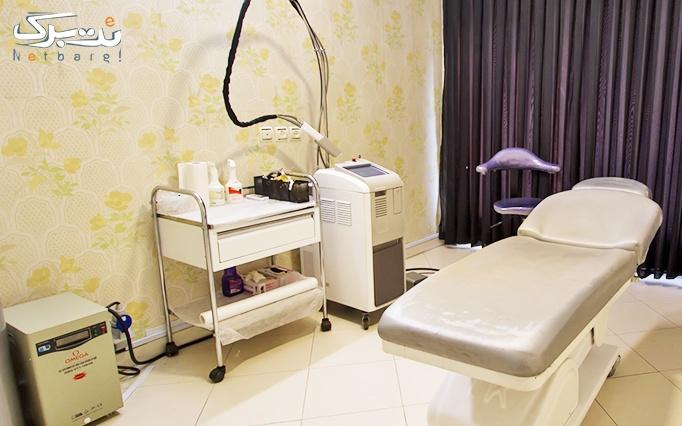 لیزر الکساندرایت در مطب دکتر میرافشاریه