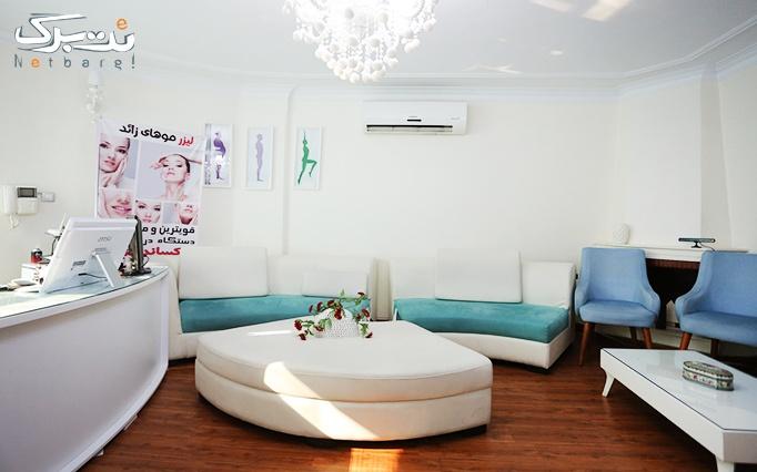 لیزر موهای زائد با دستگاه الکساندرایت در مطب خانم دکتر رساء