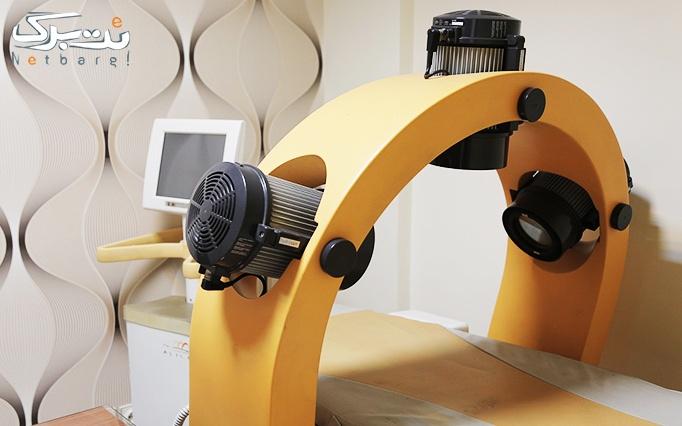 لیزر SHR در مطب آقای دکتر یاوری