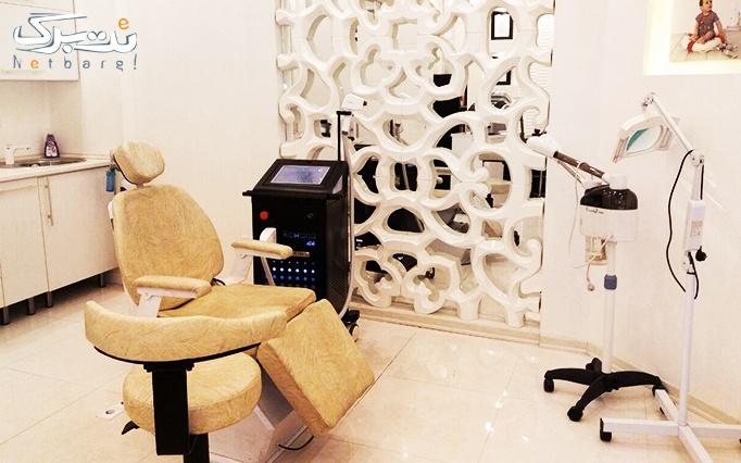 لیزر موهای زائد با دستگاه الکس در مطب دکتر غلامین