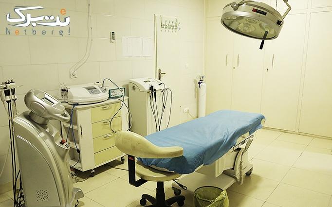 لیزر دایود در مطب دکتر طباطبایی