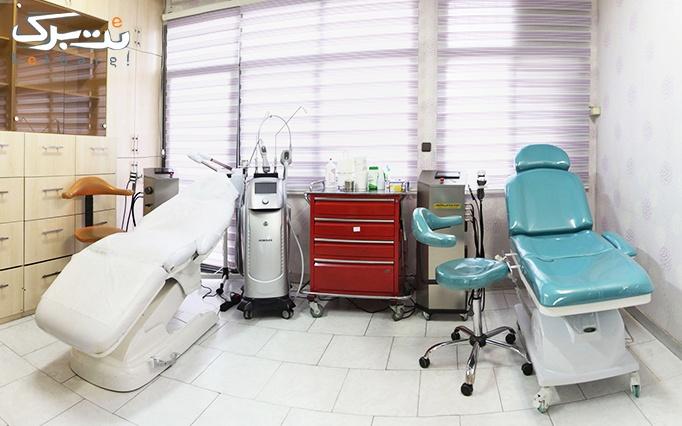 برداشتن خال در مطب دکتر مظلومی