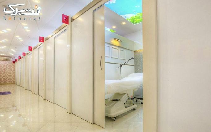 لاغری موضعی در کلینیک تخصصی باران