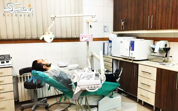 معاینه و جرمگیری دندان در کلینیک دندانپزشکی پردیس