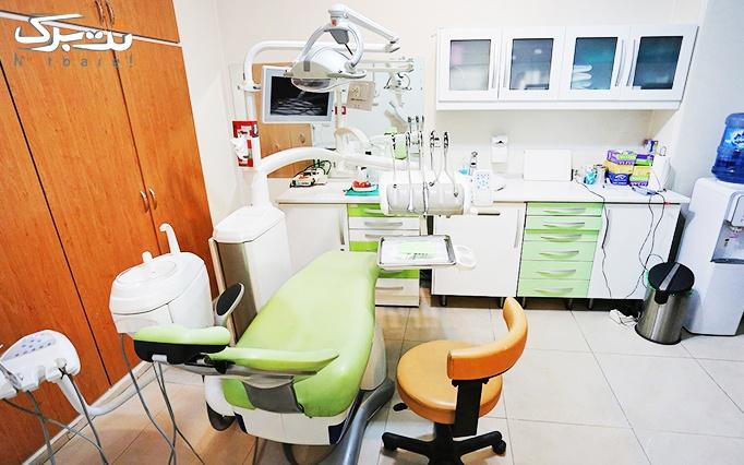 جرمگیری دندان در مطب دکتر بنی هاشمی
