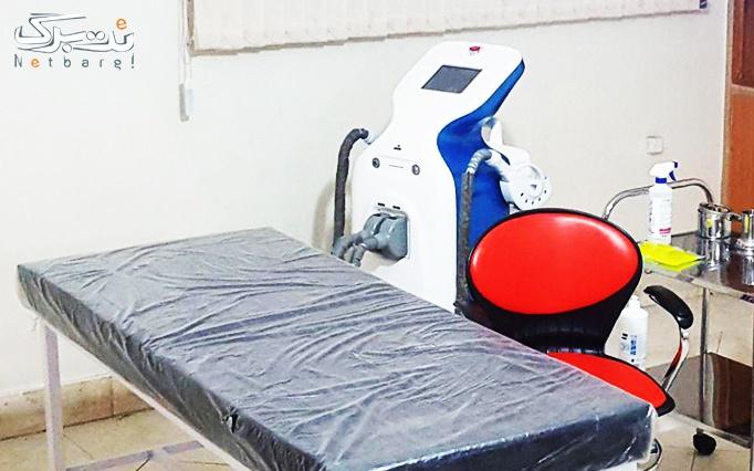 میکرونیدلینگ در مطب دکتر مشرف