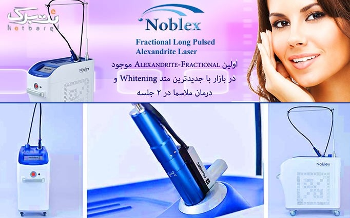 لیزرالکساندرایت Noblex 2015  در مطب دکتر لطفی