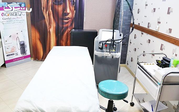 الکساندرایت  کندلا در مطب خانم دکتر شبنم ایزد