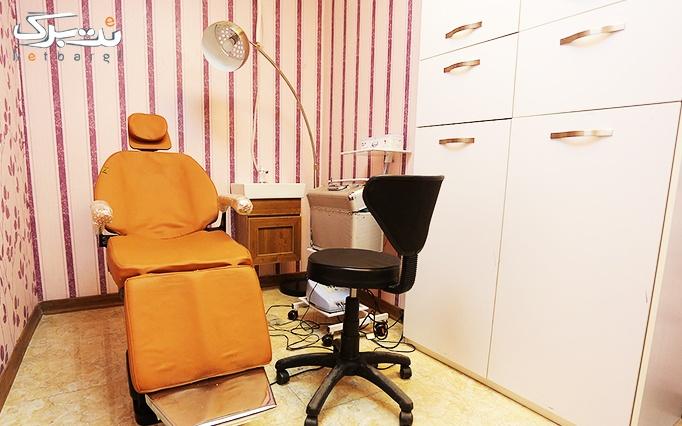 لیزر دایود shr در مطب دکتر ضیائیان