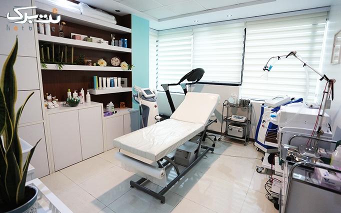 rf صورت،غبغب و کویتیشن در مطب دکتر تاج آبادی
