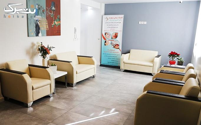 دستمزد تزریق بوتاکس دیسپورت در مطب دکتر ایزدپناه