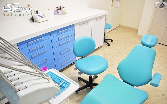 بیلیچینگ در مطب دکتر سلوتی