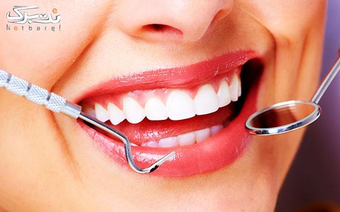 کشیدن دندان در درمانگاه میلاد قائم