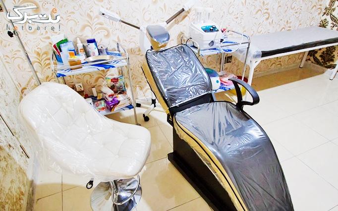 تزریق ژل در مطب دکتر افلاکی