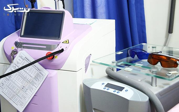 لیزر الکساندرایت در مطب دکتر حکیمی