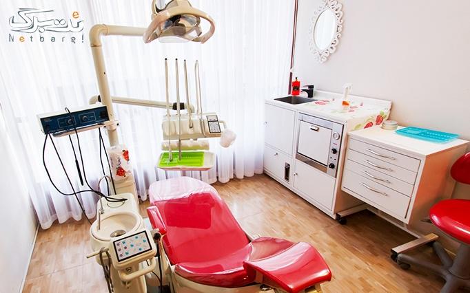 جرمگیری و بروساژ دندان در مطب دکتر امامی