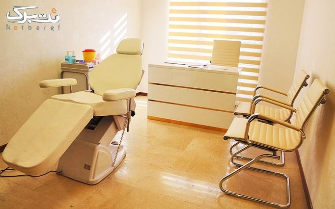 تزریق ژل و بوتاکس در مطب دکتر کمالی