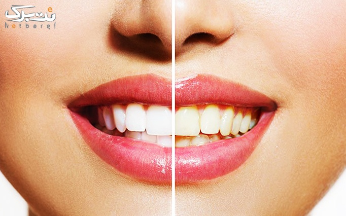 جرمگیری دندان در دندانپزشکی دکتر سرجامی