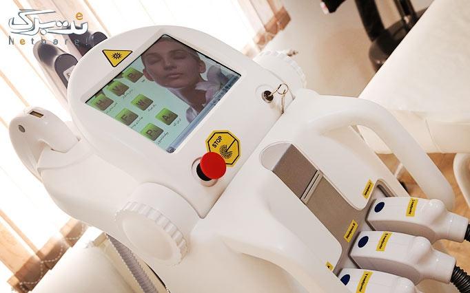 لیزر Elight -SHR در مطب دکتر منتصری