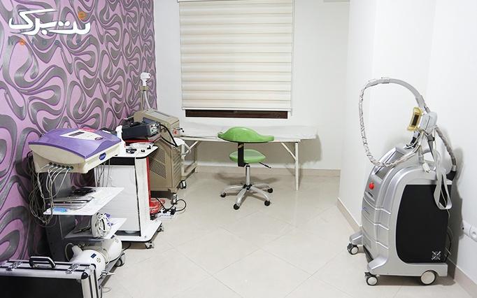 مزوتراپی سر یا صورت درمطب دکتر سنگ سفیدی
