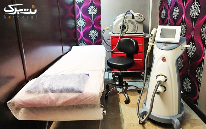 لیزر SHR در مطب دکتر مدرس زاده