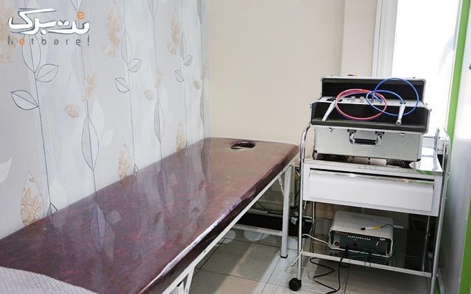 میکرودرم در مطب دکتر عزیزی