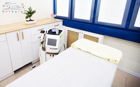 لیزر دایود ویژه زیر بغل در مطب دکتر ماهانی