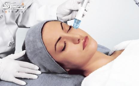 لیزر الکس ویژه نواحی بدن در مطب دکتر چاووشی