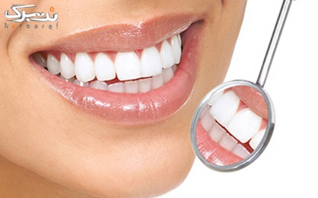 جرمگیری دندان و بیلیچینگ دندان در مطب دکتر بهرامی