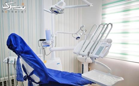 ایمپلنت دندان در مطب دکتر خداداد