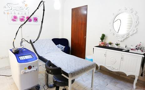 لیزر الکساندرایت ویژه نواحی بدن در مطب دکتر صالحی
