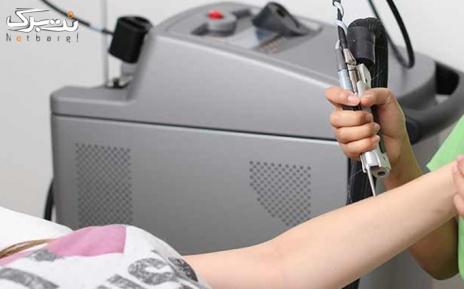 لیزر موهای زائد ویژه زیر بغل در مطب دکتر خانجانی