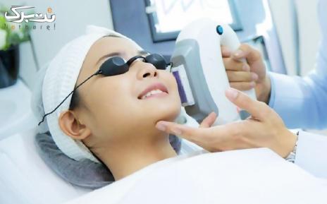 لیزر موهای زائد زیر بغل در مطب خانم دکتر روشنی