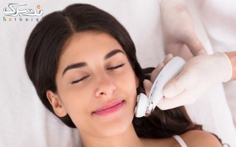 لیزر موهای زائد ویژه زیر بغل در مطب دکتر حسینی