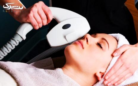 لیزر موهای زائد ناحیه زیر بغل در مطب دکتر حسینی