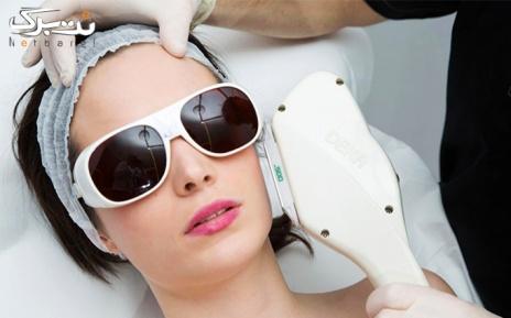 لیزر موهای زائد نواحی بدن در مطب دکتر مجعد